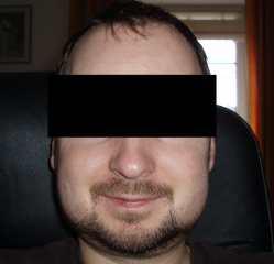 Gesicht 2 Tage nach einer Weisheitszahn-Operation